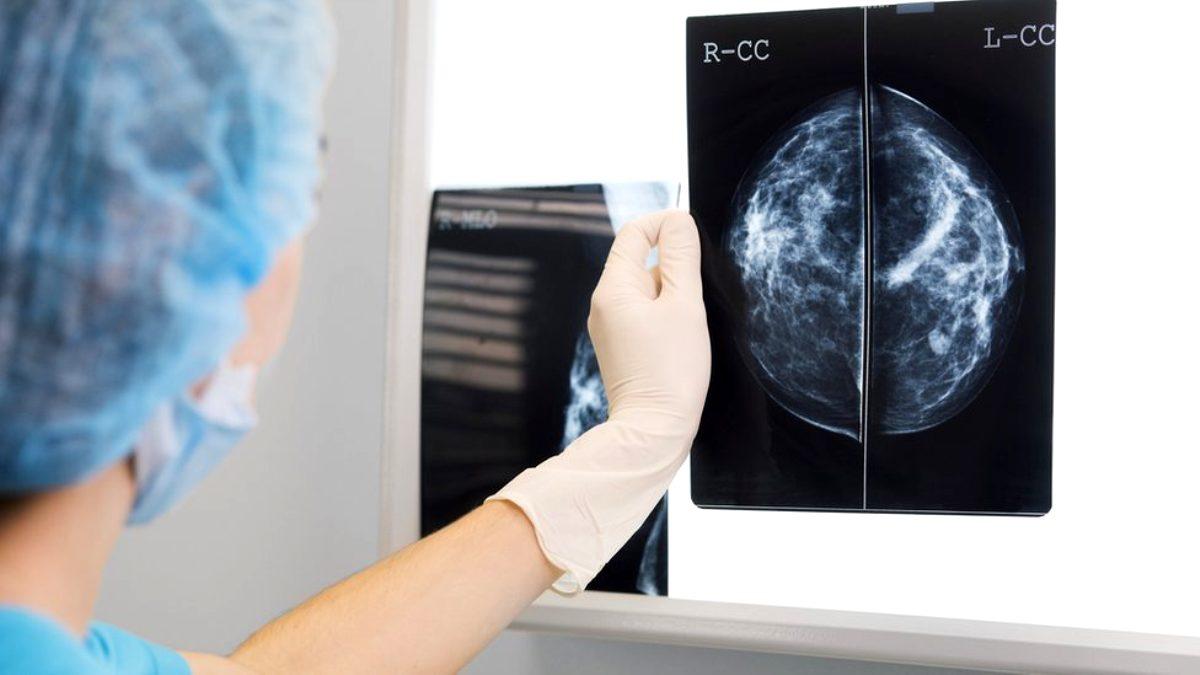 Altı doktorun geliştirdiği yapay zeka, meme kanserini doktorlardan daha iyi teşhis etti