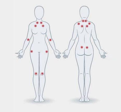 Fibromiyalji nedir? Belirtileri nelerdir? Tedavisi var mıdır?
