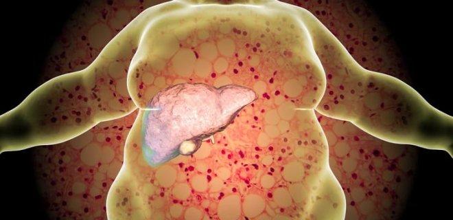 Karaciğer yağlanması ve Karaciğer yağlanması tedavisi