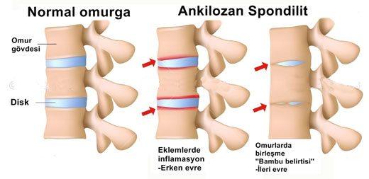 Ankilozan spondilit nedir? Ankilozan spondilit belirtileri ve tedavisi..