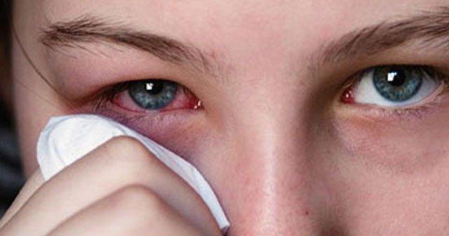 Göz kanlanması neden olur, nasıl geçer? Tedavisi ve öneriler