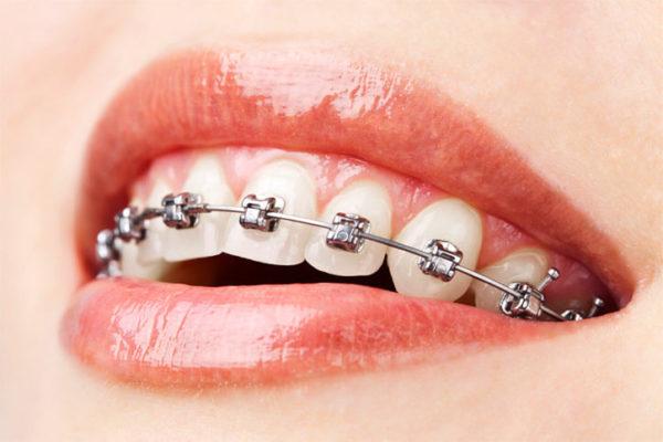 Sabit ortodontik tedavi ve braketler
